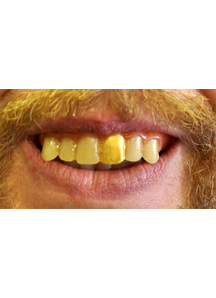 Teeth Glow Gold Miner